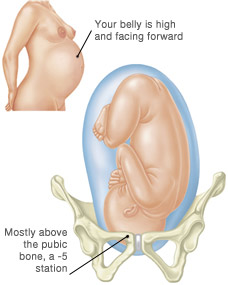 Summary -> Pubic Bone Pain In Pregnancy Verywell Family