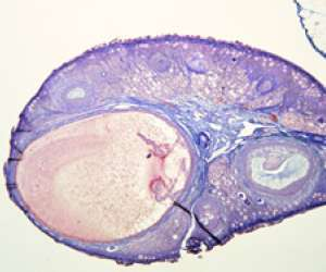 mature ovarian follicle on day 12 of menstrual cycle