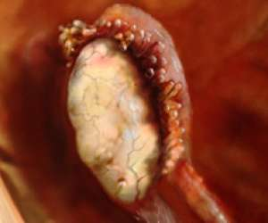ovary at the end of fallopian tube ready to release egg