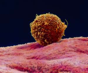 blastocyst resting on the lining of the uterus