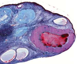 empty egg follicle in the ovary
