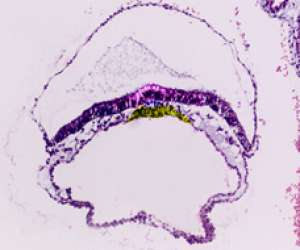 human embryo developing its third layer