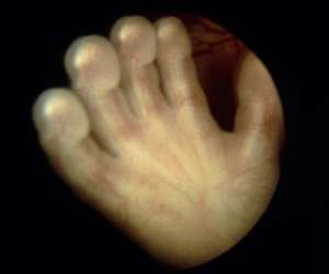 hand of human fetus at 14 weeks and 3 days