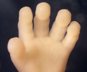 hand of human fetus at 15 weeks and 2 days