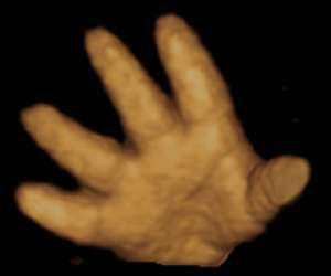 hand of human fetus 37 weeks and 2 days